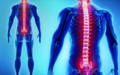 Entenda o que é artrodese e quais são as principais indicações