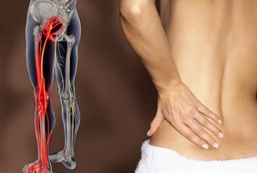 Como a inflamação do nervo ciático interfere na hérnia de disco lombar?